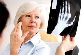 Az Elhízás és A Reumatoid Artritisz Kapcsolata