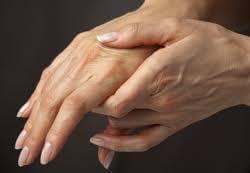 kezizuleti gyulladas