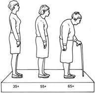 A Csontritkuláshoz Kapcsolódó Testtartás és A Rizikófaktorok