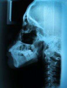 állkapocs kezelés (TMI)