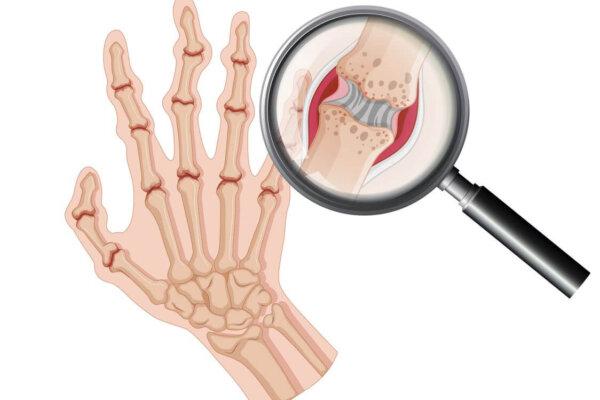 Artritisz